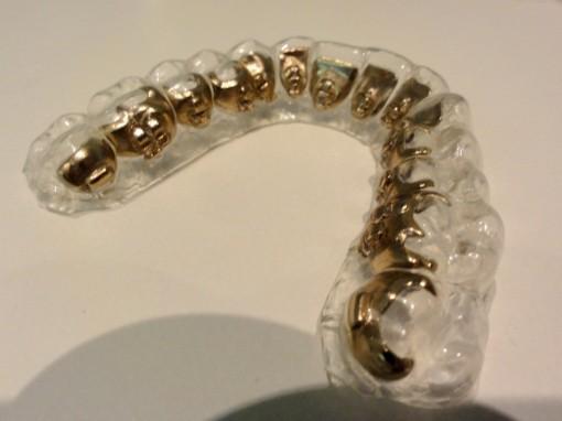Orthodontie appareillagelingual 30ansenbeaute II 510x382 Porter un appareil dentaire à 30 ans, est ce bien raisonnable?!